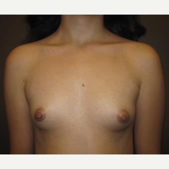 18-24 year old woman treated with Breast Augmentation before 3207754