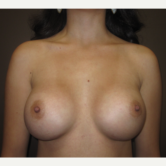 18-24 year old woman treated with Breast Augmentation after 3207754