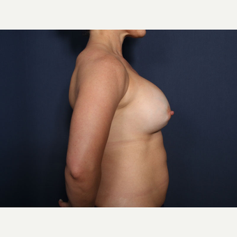35-44 year old woman treated with Breast Implant Revision (view 2 of 2) before 3225712