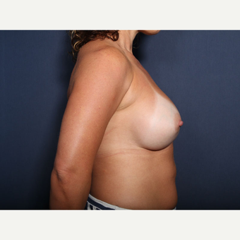 35-44 year old woman treated with Breast Implant Revision (view 2 of 2) after 3225712