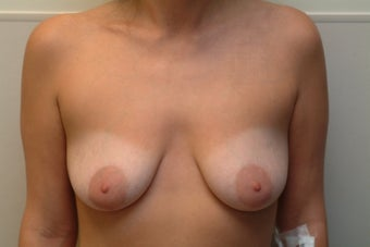 27 year old woman who wants correction of small sagging breasts.