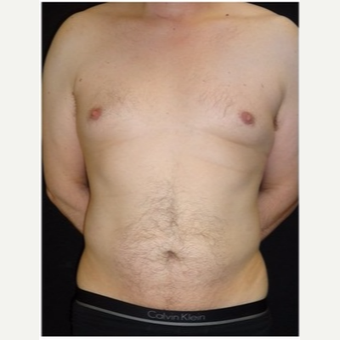 45-54 year old man treated with Liposuction after 3046660