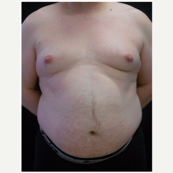 45-54 year old man treated with Liposuction before 3046660