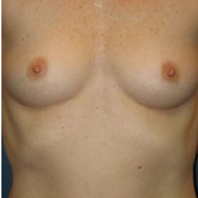 Breast Augmentation before 3720789
