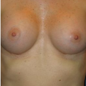 Breast Augmentation after 3720789