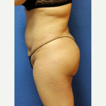 25-34 year old woman treated with Brazilian Butt Lift after 3456699