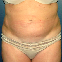 52 year old woman treated with Tummy Tuck before 3578306