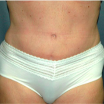 52 year old woman treated with Tummy Tuck after 3578306