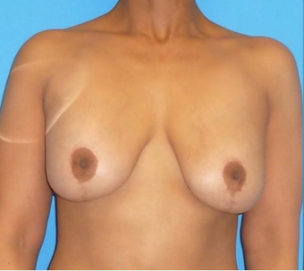 45-54 year old woman treated with Breast Implant Removal before 3000932