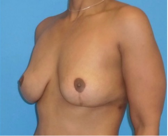 45-54 year old woman treated with Breast Implant Removal 3000932