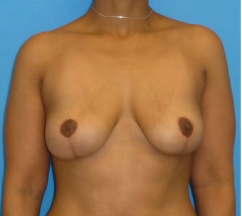 45-54 year old woman treated with Breast Implant Removal after 3000932