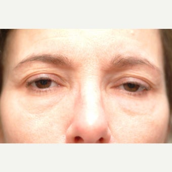 46 year old man treated with Eyelid Surgery before 2269892