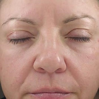 35-44 year old woman treated with Glycolic Peel after 2005153