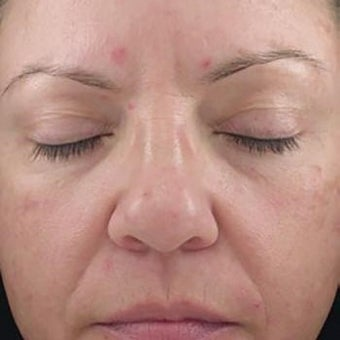35-44 year old woman treated with Glycolic Peel before 2005153