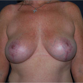 35-44 year old woman with asymmetrical and large breasts treated with breasts reduction. after 2987279