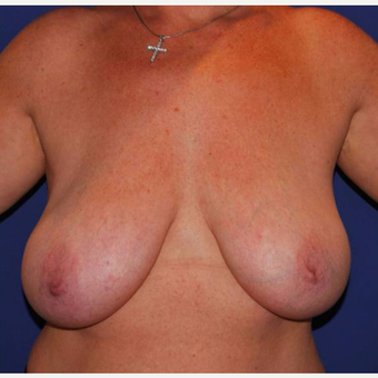 35-44 year old woman with asymmetrical and large breasts treated with breasts reduction. before 2987279
