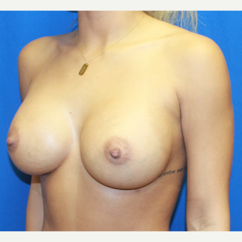 25-34 year old woman treated with Breast Augmentation after 3104598
