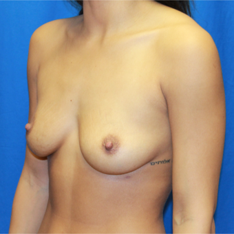 25-34 year old woman treated with Breast Augmentation before 3104598