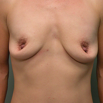 35-44 year old woman treated with Mentor Breast Implants before 3536697