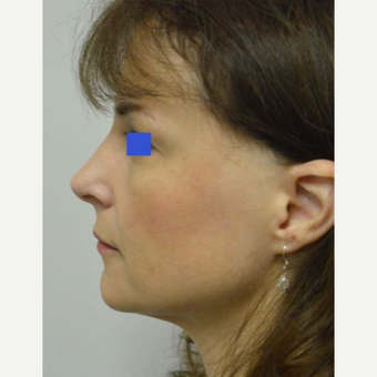 45-54 year old woman treated with a wide nose treated with a Rhinoplasty before 3482848