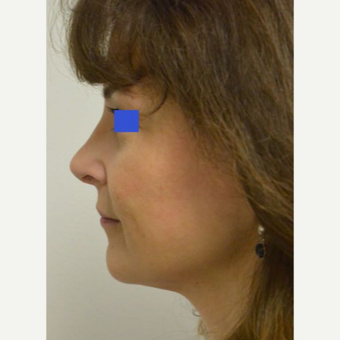 45-54 year old woman treated with a wide nose treated with a Rhinoplasty after 3482848