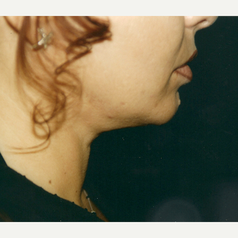35-44 year old woman treated with Neck Lift after 3271909