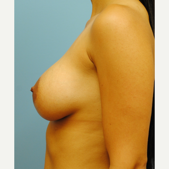 27 year old woman treated with Breast Implants, Saline B to full C cup after 3624404