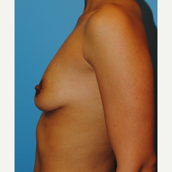 27 year old woman treated with Breast Implants, Saline B to full C cup before 3624404
