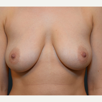 Breast Augmentation before 3108818