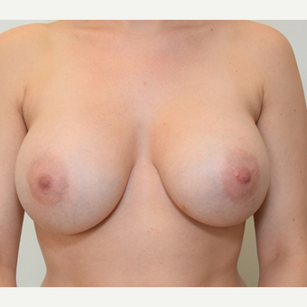 Breast Augmentation after 3108818