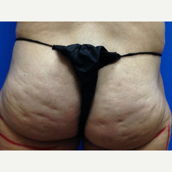 45-54 year old woman treated with Cellfina before 3708719