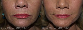 Dermabrasion for lines around the mouth before 1465999