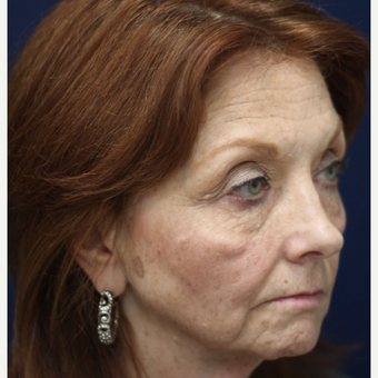 55-64 year old woman treated with Injectable Fillers before 3243112