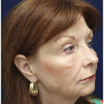 55-64 year old woman treated with Injectable Fillers after 3243112