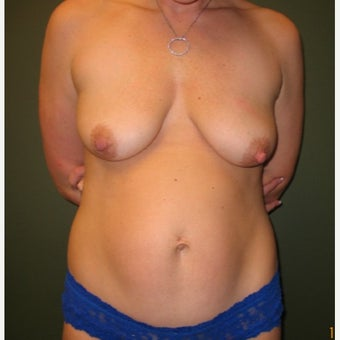 25-34 year old woman treated with Tummy Tuck