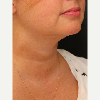 Chin Liposuction after 3617114