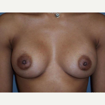 Breast Augmentation after 3560647