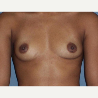Breast Augmentation before 3560647