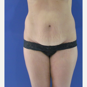 45-54 year old woman treated with Tummy Tuck before 3663947
