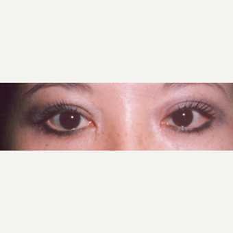 25-34 year old woman treated with Eyelid Surgery after 3544702