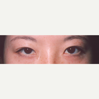 25-34 year old woman treated with Eyelid Surgery before 3544702