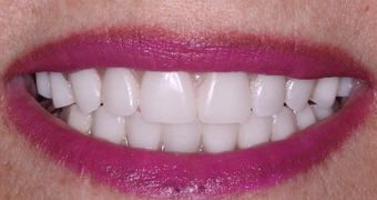 Permanent Teeth-in-1-Day Dental Implant Solution after 1919912
