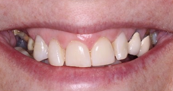 Permanent Teeth-in-1-Day Dental Implant Solution before 1919912