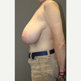 45-54 year old woman treated with Breast Lift before 3129302