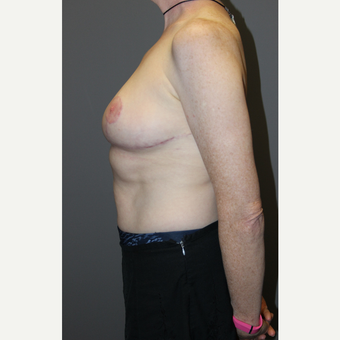 45-54 year old woman treated with Breast Lift after 3129302