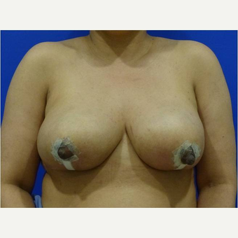 45-54 year old woman treated with Breast Implant Removal after 3736406