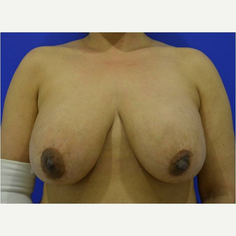45-54 year old woman treated with Breast Implant Removal before 3736406