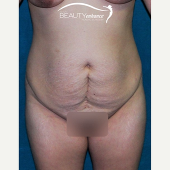 Tummy Tuck before 2790841