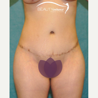 Tummy Tuck after 2790841