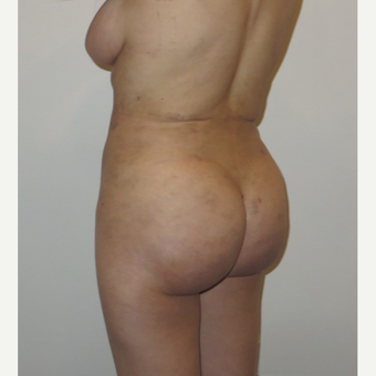 35-44 year old woman treated with Brazilian Butt Lift after 3338894